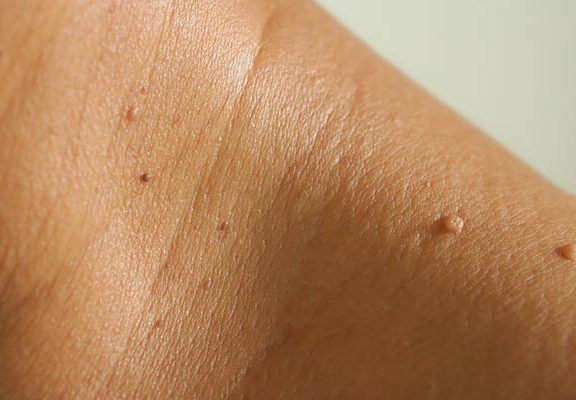 Treatments For Skin Tags at Home With Deisana Body Butter Or Moles Removal Patches